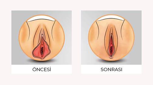 Labioplasti Sonrası